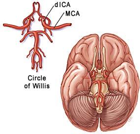 Moyamoya Disease 187 Lillian S Wells Department Of
