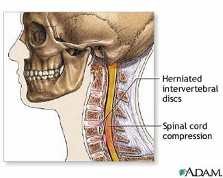 herniated cervical disc with compression
