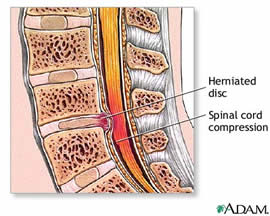 herniated disc lumbar lillian s wells department of