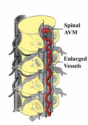spinal avm arteriovenous malformation lillian s wells