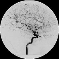 Image: Angiogram