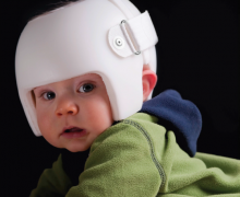 Infant with cranial molding helmet