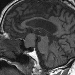 Pituitary Tumor scan