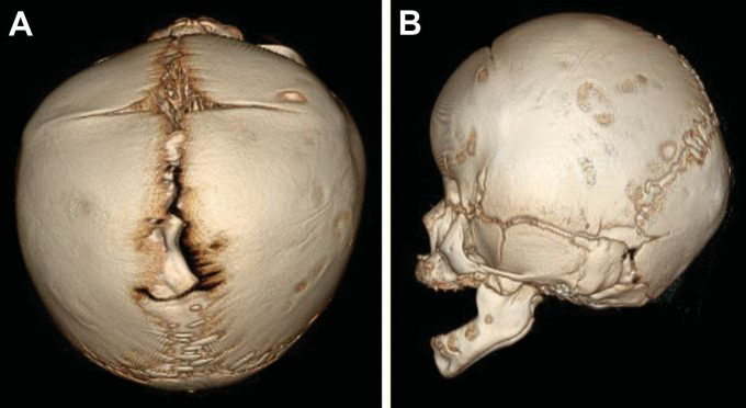 Example image of skull with bilateral coronal craniosynostosis