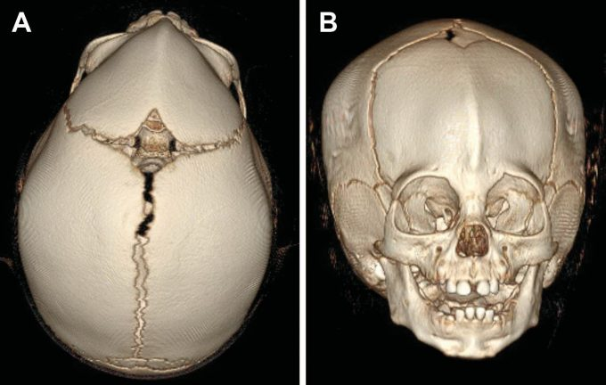Example image of a skull with metopic craniosynostosis