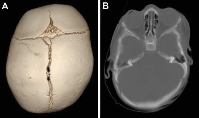 Infant skull image with positional plagiocephaly