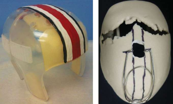 Example of cranial molding helmet (left); Example of a skull model with cranial expander springs (right).
